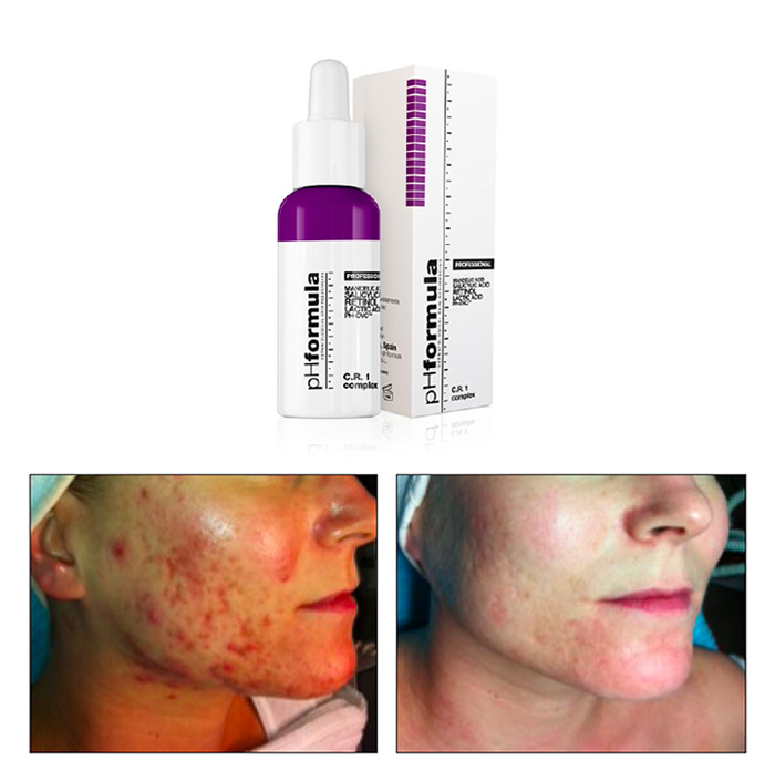 pHformula Chronic Redness Treatment