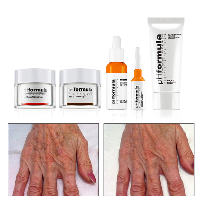 Age Spot Treatment pHformula