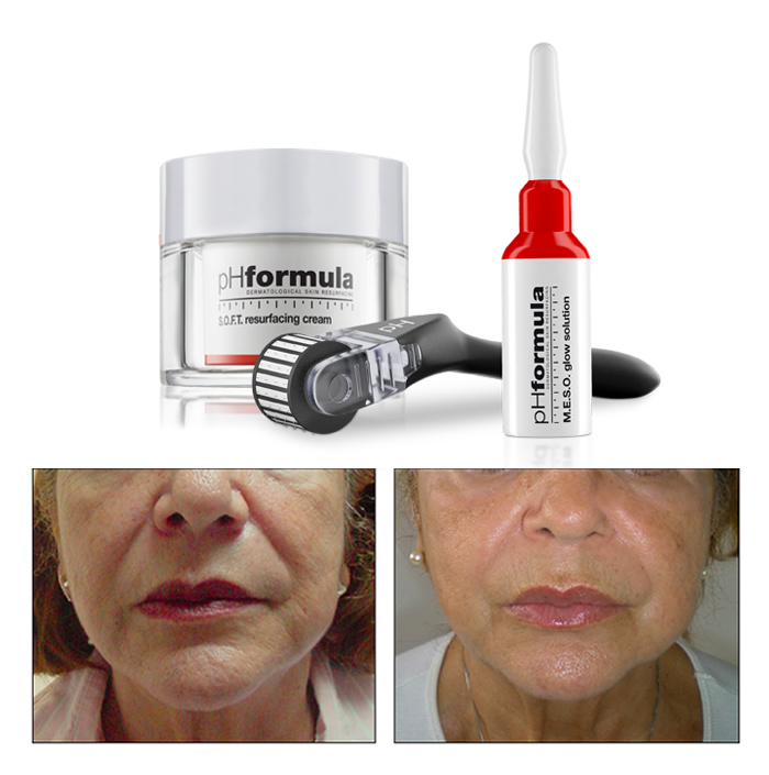 Wrinkle Treatment pHformula