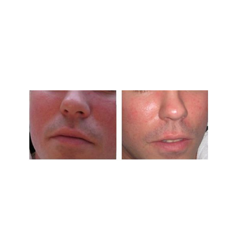 before and after pHformula chronic redness