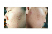 before and after pHformula acne